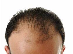 Afnemende hoeveelheid haren