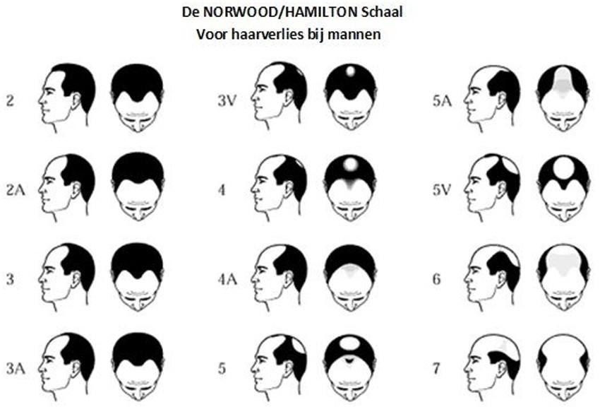 hamilton-schaal